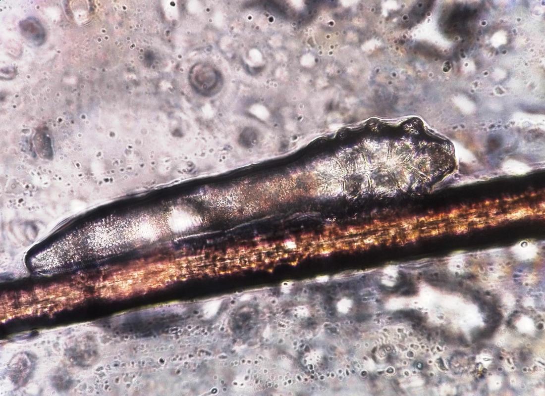 demodex optyk okulista